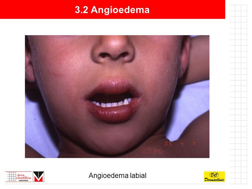3.2 Angioedema Angioedema labial