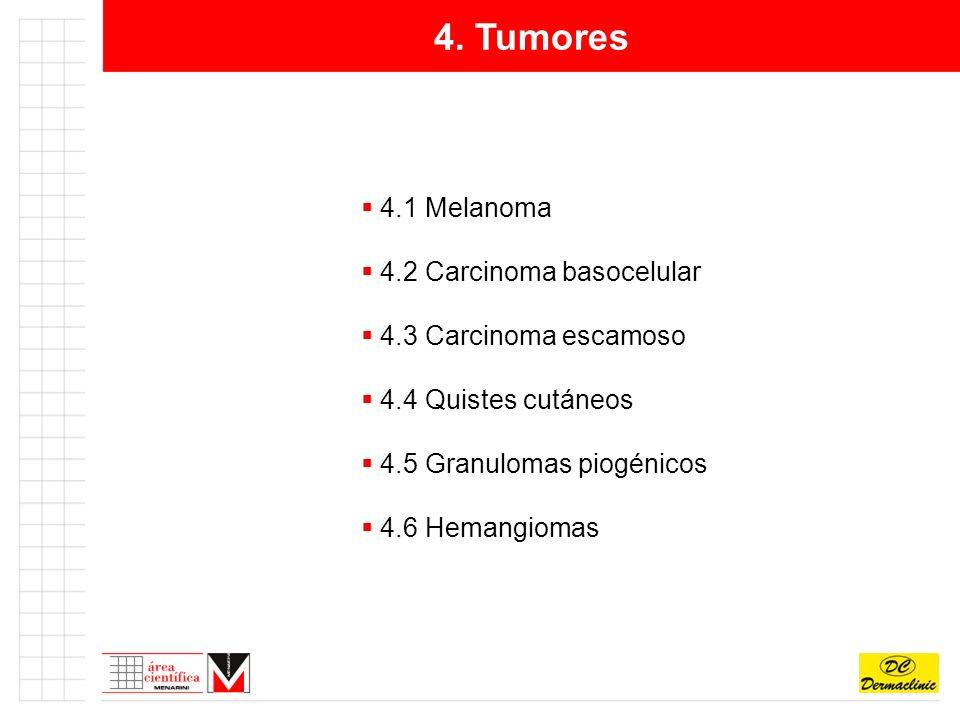 4. Tumores 4.1 Melanoma 4.2 Carcinoma basocelular