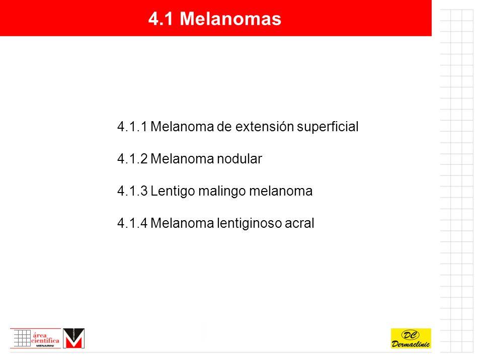 4.1 Melanomas 4.1.1 Melanoma de extensión superficial