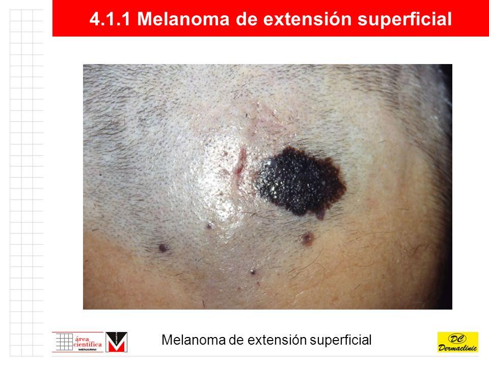 4.1.1 Melanoma de extensión superficial
