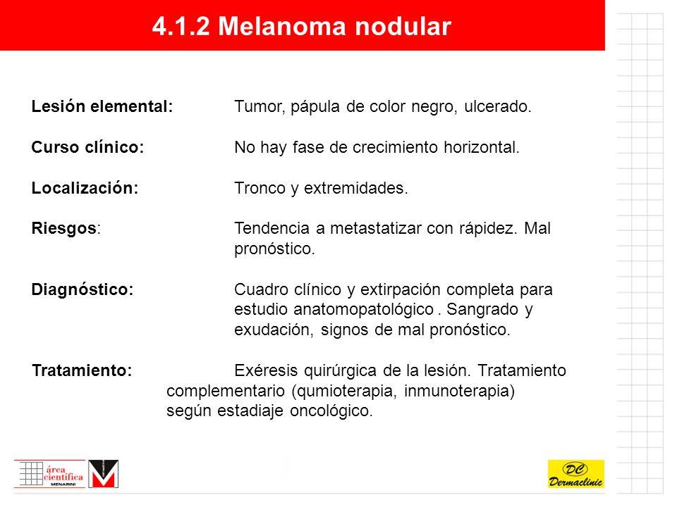 4.1.2 Melanoma nodular Lesión elemental: Tumor, pápula de color negro, ulcerado. Curso clínico: No hay fase de crecimiento horizontal.