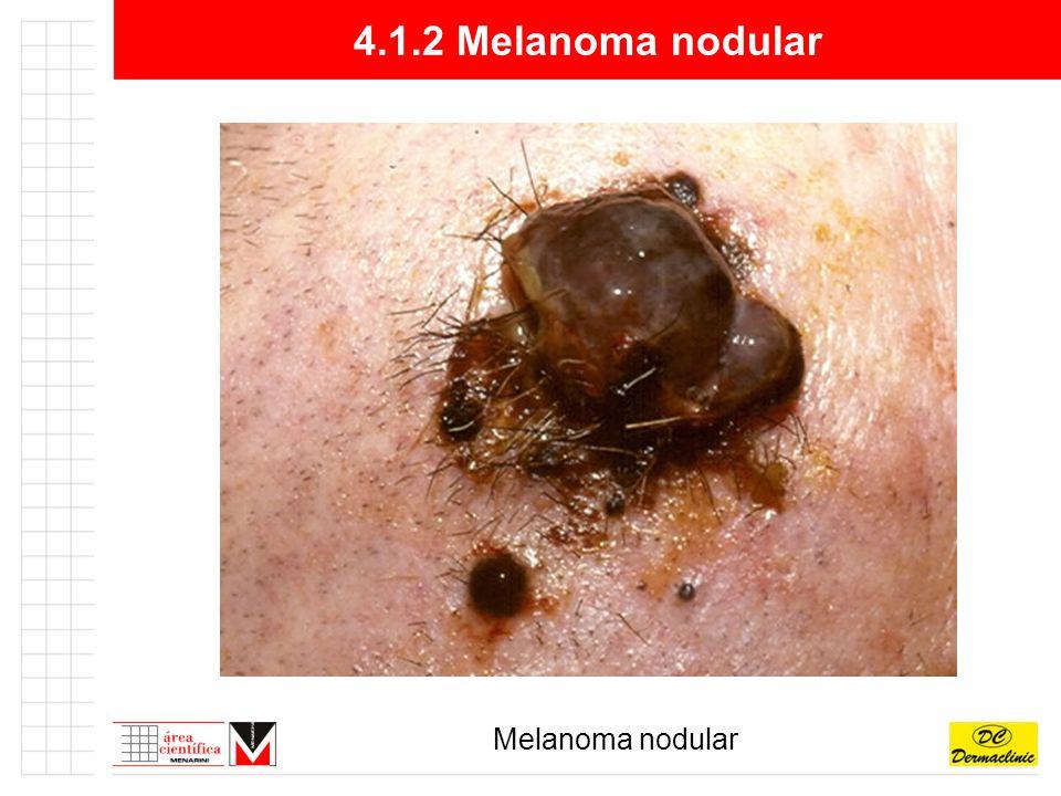 4.1.2 Melanoma nodular Melanoma nodular