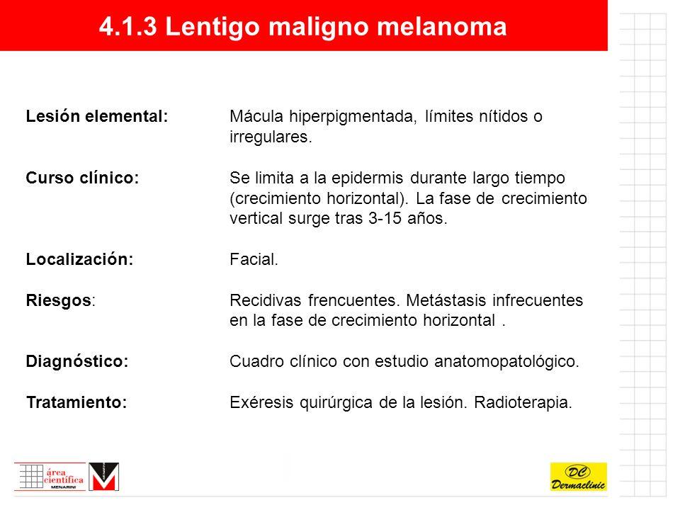 4.1.3 Lentigo maligno melanoma