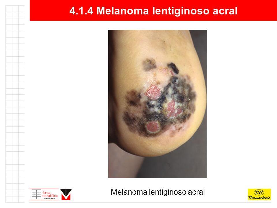 4.1.4 Melanoma lentiginoso acral