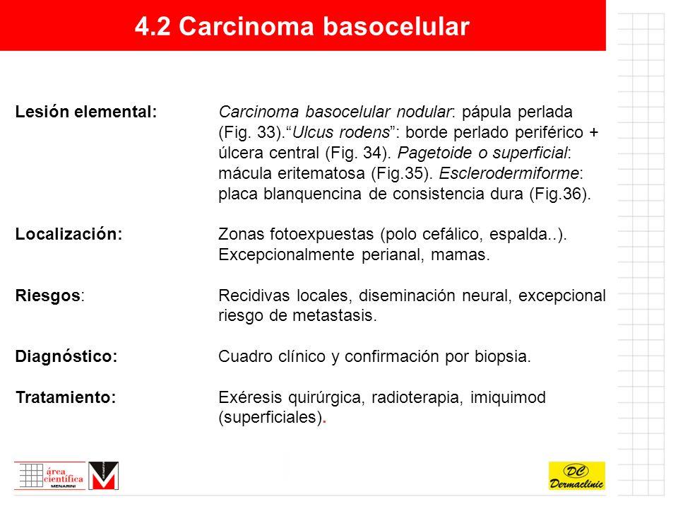 4.2 Carcinoma basocelular