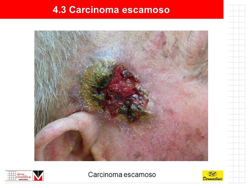 4.3 Carcinoma escamoso Carcinoma escamoso