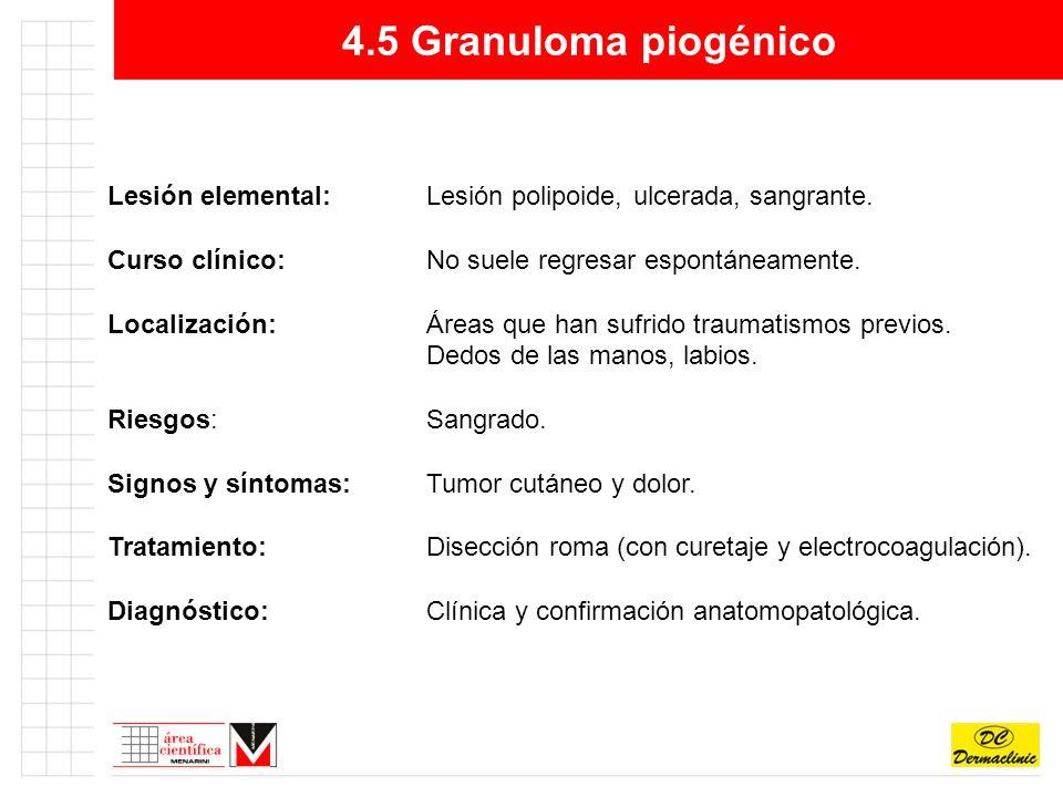 4.5 Granuloma piogénico Lesión elemental: Lesión polipoide, ulcerada, sangrante. Curso clínico: No suele regresar espontáneamente.