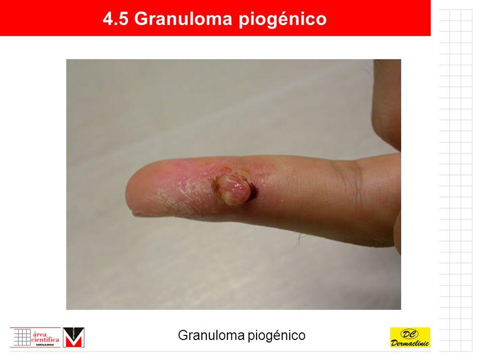 4.5 Granuloma piogénico Granuloma piogénico
