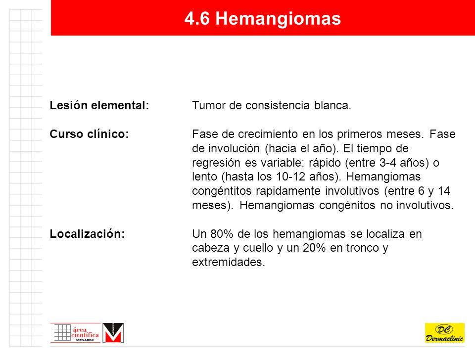 4.6 Hemangiomas Lesión elemental: Tumor de consistencia blanca.