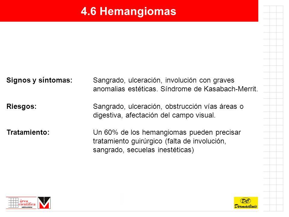 4.6 Hemangiomas Signos y síntomas: Sangrado, ulceración, involución con graves anomalias estéticas. Síndrome de Kasabach-Merrit.