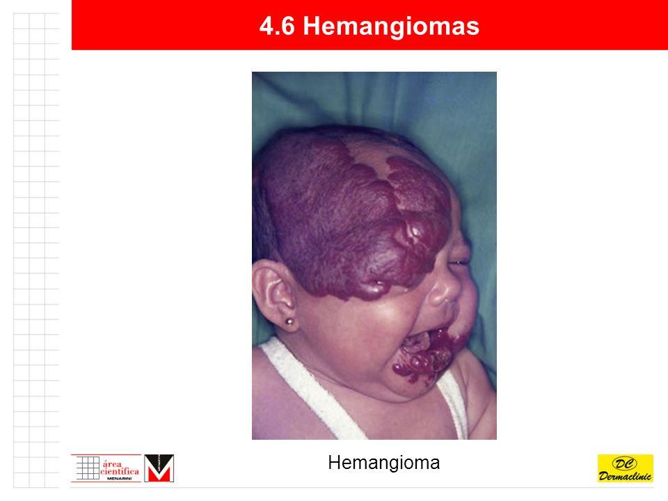 4.6 Hemangiomas Hemangioma