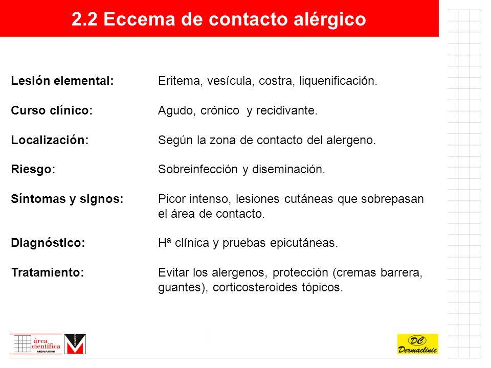 2.2 Eccema de contacto alérgico