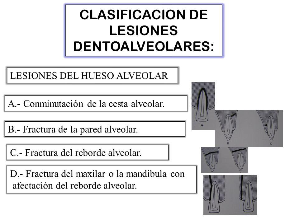 CLASIFICACION DE LESIONES DENTOALVEOLARES: