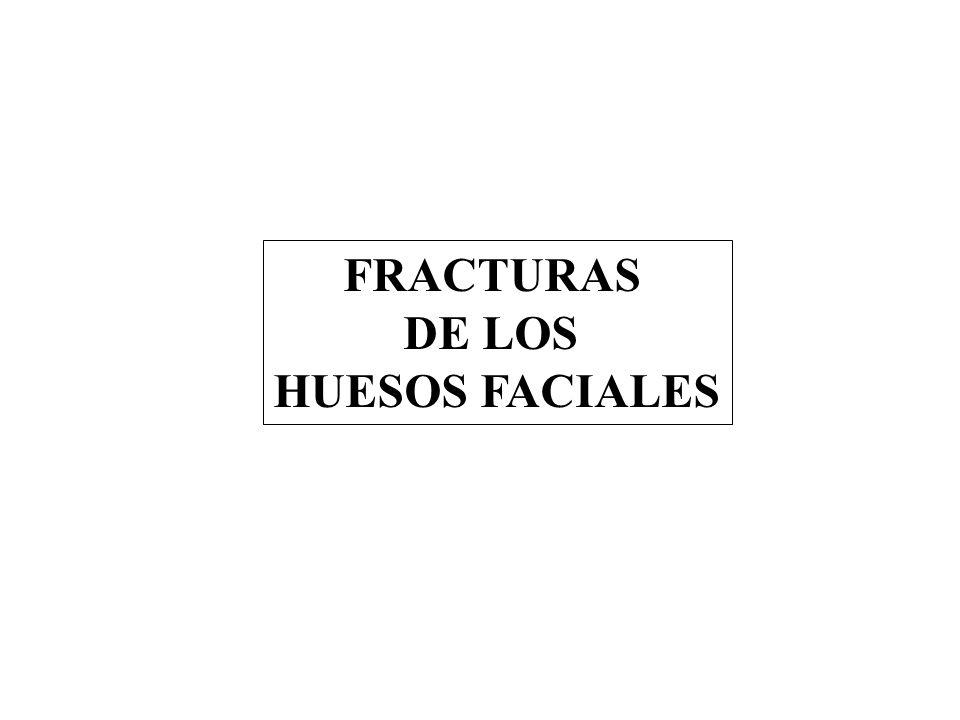 FRACTURAS DE LOS HUESOS FACIALES