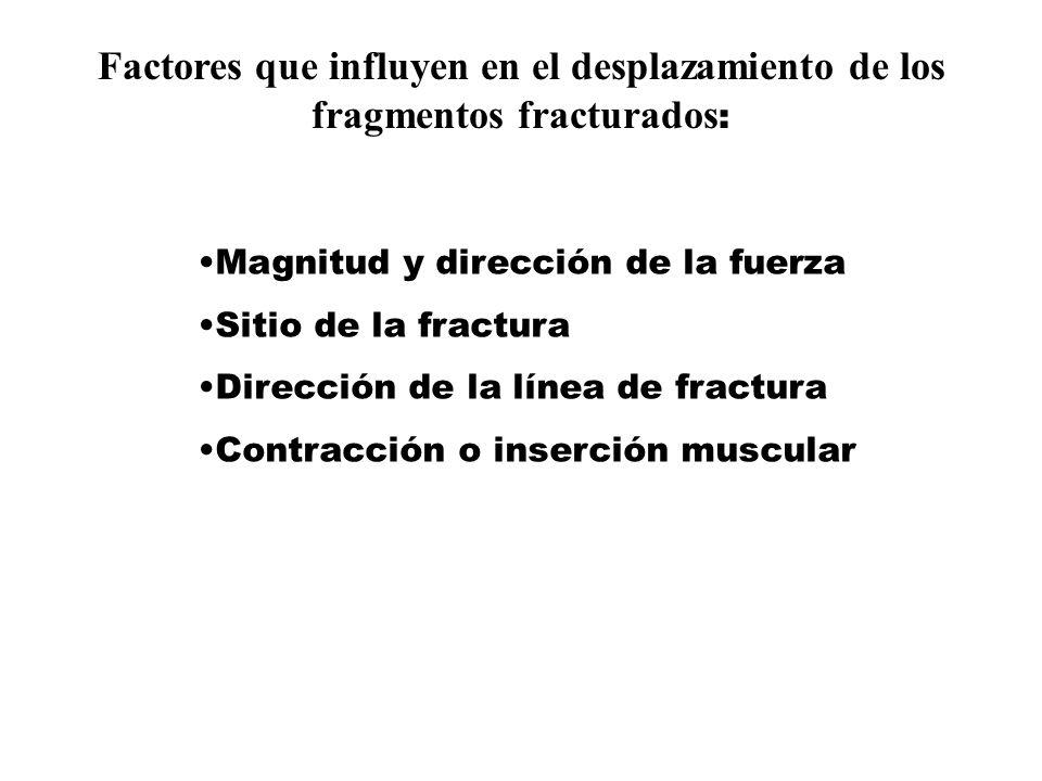 Factores que influyen en el desplazamiento de los fragmentos fracturados: