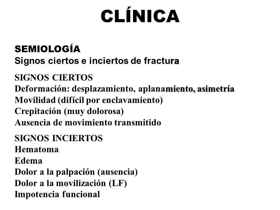 CLÍNICA SEMIOLOGÍA Signos ciertos e inciertos de fractura