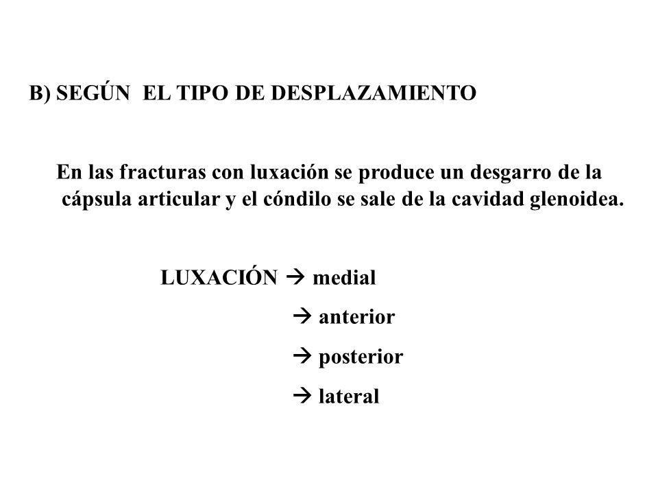 B) SEGÚN EL TIPO DE DESPLAZAMIENTO