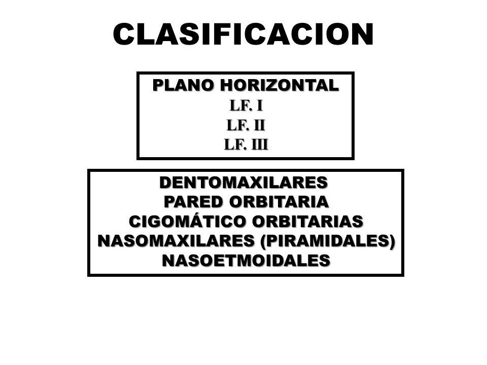 CIGOMÁTICO ORBITARIAS NASOMAXILARES (PIRAMIDALES)