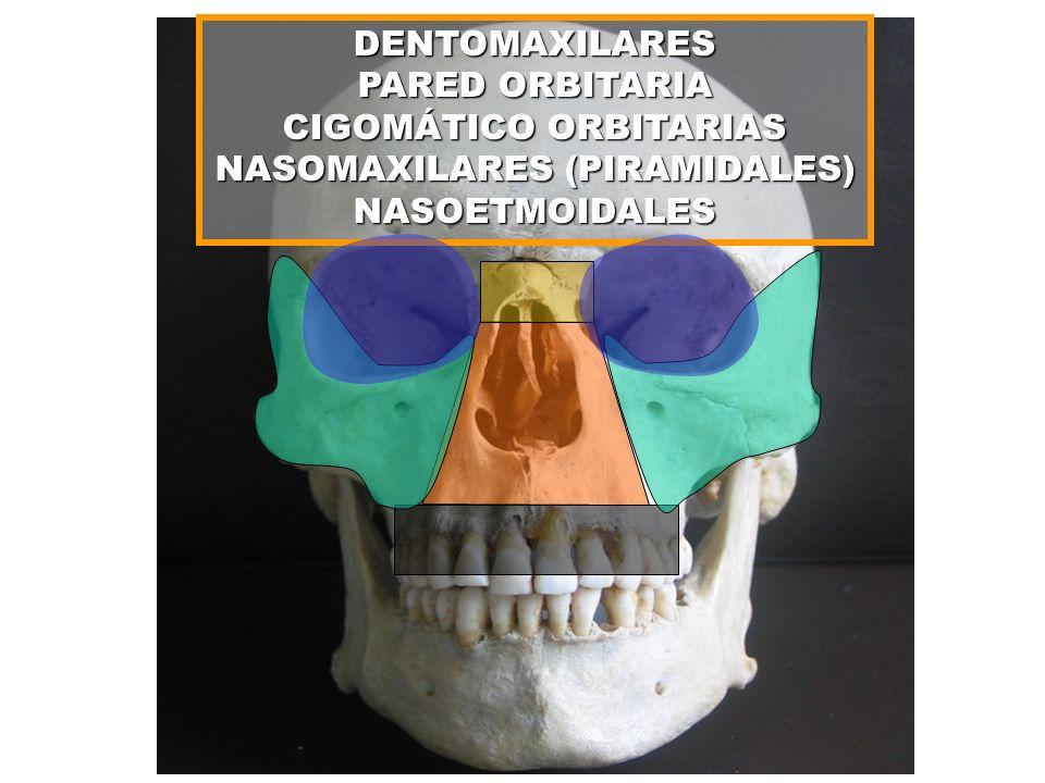 CIGOMÁTICO ORBITARIAS NASOMAXILARES (PIRAMIDALES) NASOETMOIDALES