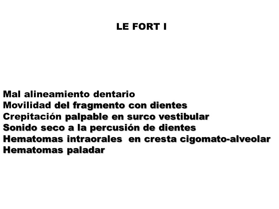 LE FORT I Mal alineamiento dentario. Movilidad del fragmento con dientes. Crepitación palpable en surco vestibular.