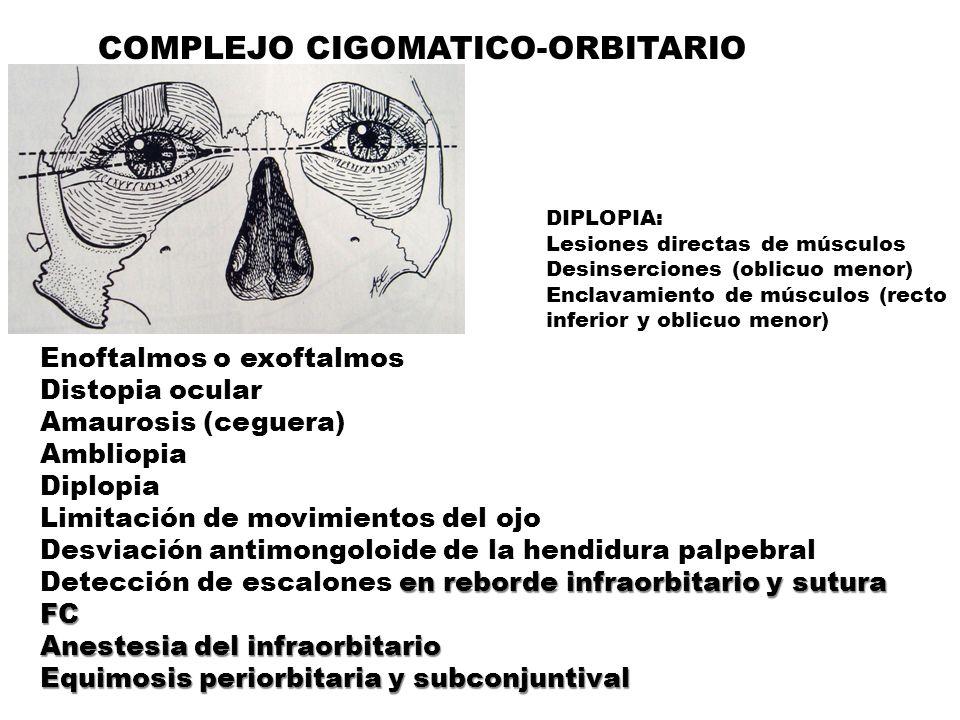 COMPLEJO CIGOMATICO-ORBITARIO