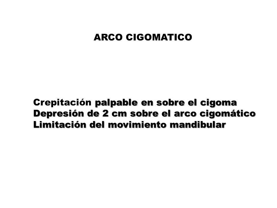 ARCO CIGOMATICO Crepitación palpable en sobre el cigoma. Depresión de 2 cm sobre el arco cigomático.