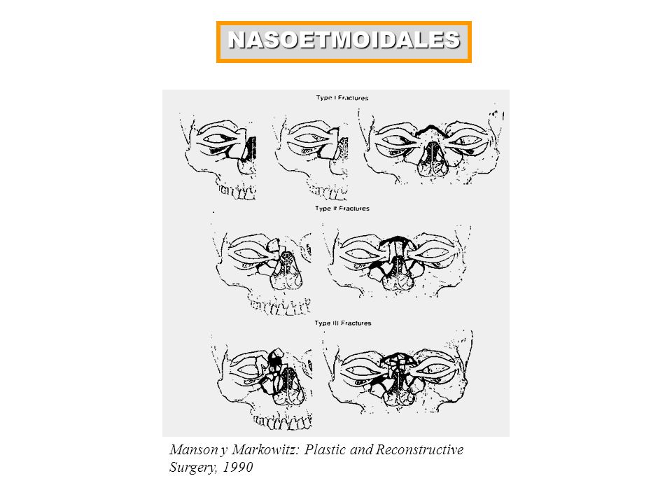NASOETMOIDALES Manson y Markowitz: Plastic and Reconstructive Surgery, 1990