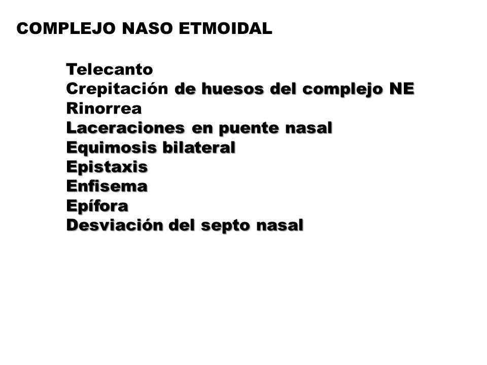 COMPLEJO NASO ETMOIDAL