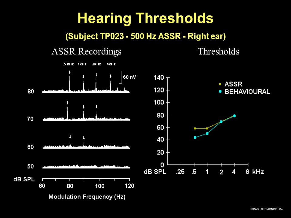(Subject TP023 - 500 Hz ASSR - Right ear)