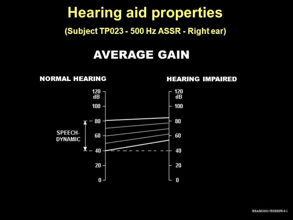 Hearing aid properties (Subject TP023 - 500 Hz ASSR - Right ear)