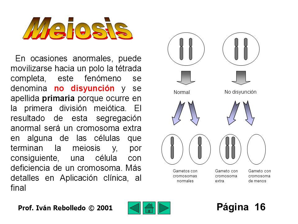 Meiosis Normal. No disyunción. Gametos con. cromosomas. normales. Gameto con. cromosoma. extra.