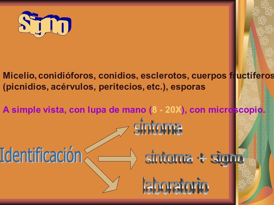 síntoma Identificación síntoma + signo laboratorio Signo