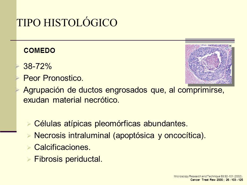 TIPO HISTOLÓGICO 38-72% Peor Pronostico.