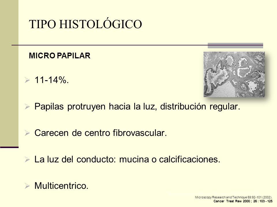 TIPO HISTOLÓGICO MICRO PAPILAR. 11-14%. Papilas protruyen hacia la luz, distribución regular. Carecen de centro fibrovascular.