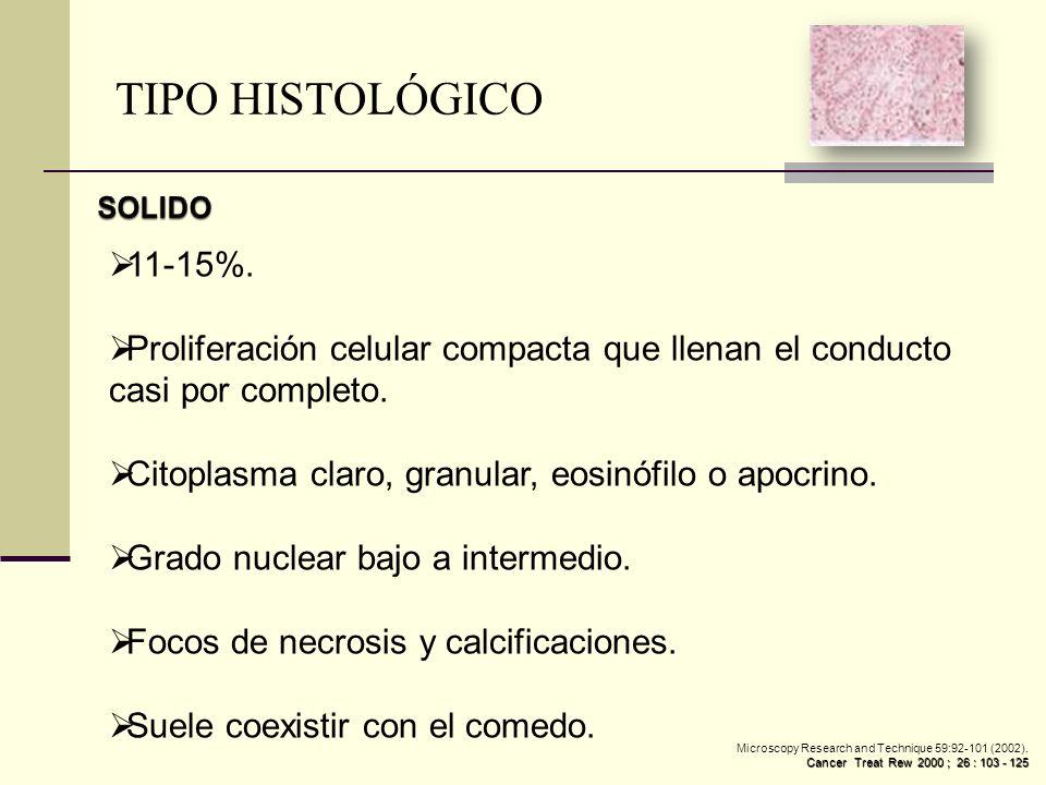 TIPO HISTOLÓGICO SOLIDO. 11-15%. Proliferación celular compacta que llenan el conducto casi por completo.