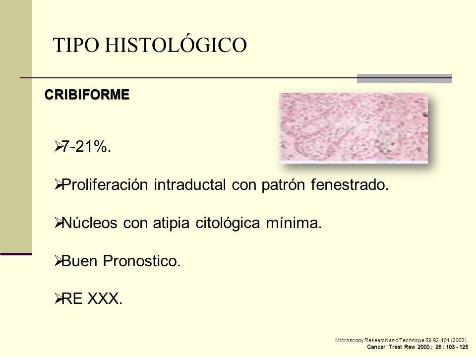 TIPO HISTOLÓGICO CRIBIFORME. 7-21%. Proliferación intraductal con patrón fenestrado. Núcleos con atipia citológica mínima.