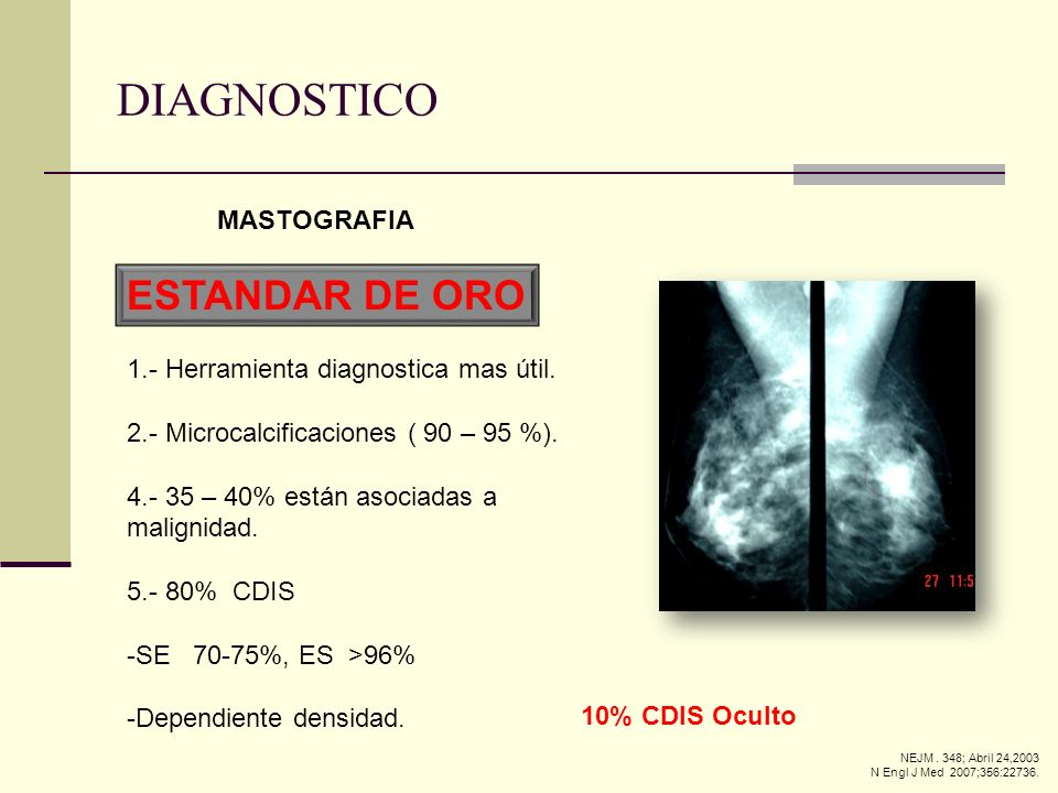 DIAGNOSTICO ESTANDAR DE ORO MASTOGRAFIA