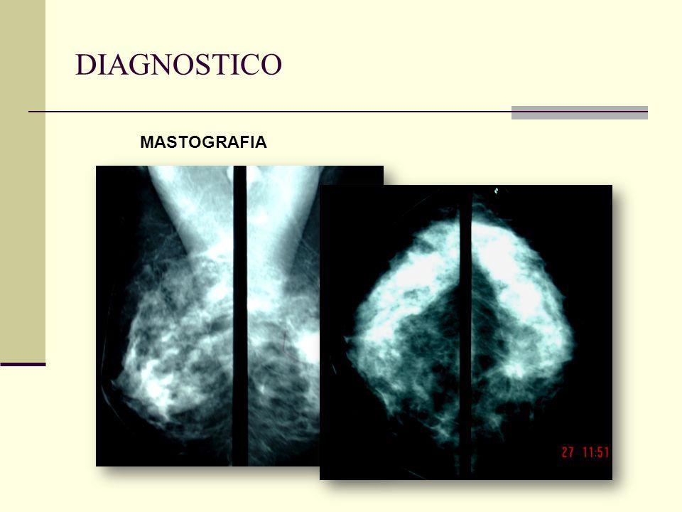 DIAGNOSTICO MASTOGRAFIA