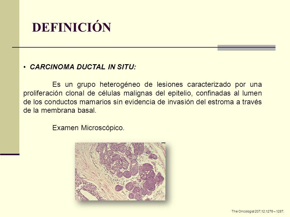 DEFINICIÓN CARCINOMA DUCTAL IN SITU: