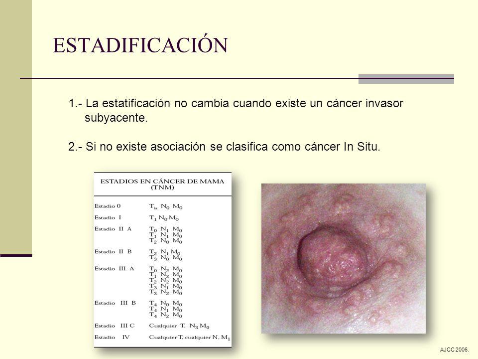 ESTADIFICACIÓN 1.- La estatificación no cambia cuando existe un cáncer invasor. subyacente.