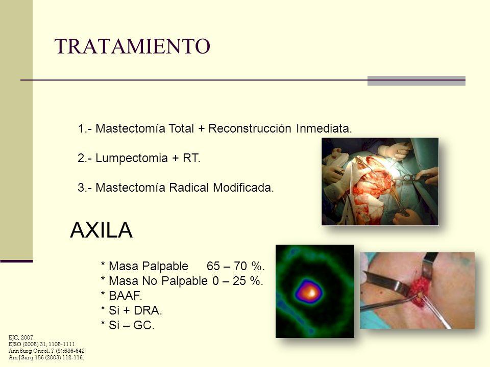 TRATAMIENTO AXILA 1.- Mastectomía Total + Reconstrucción Inmediata.