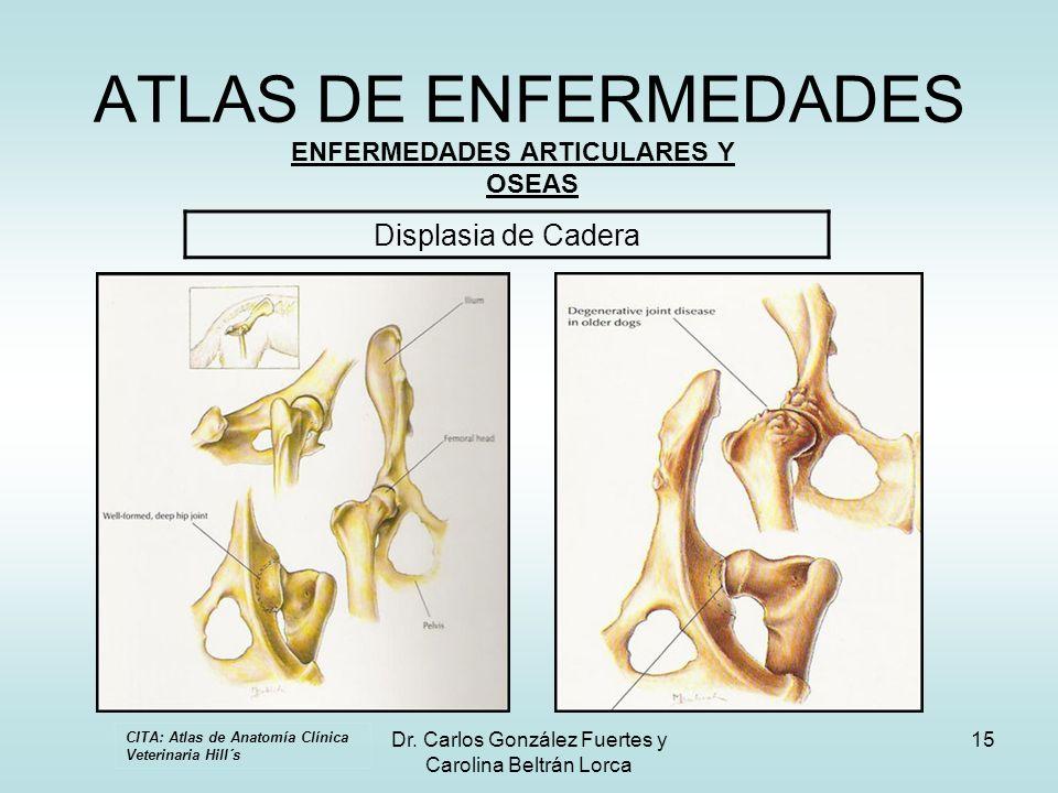ENFERMEDADES ARTICULARES Y OSEAS
