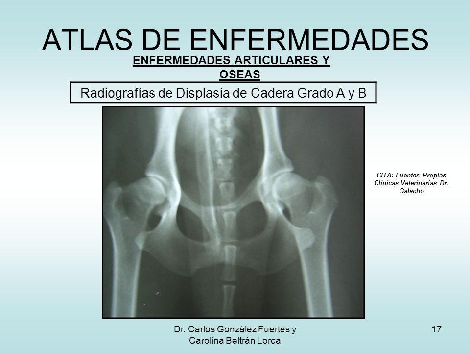 ATLAS DE ENFERMEDADES Radiografías de Displasia de Cadera Grado A y B