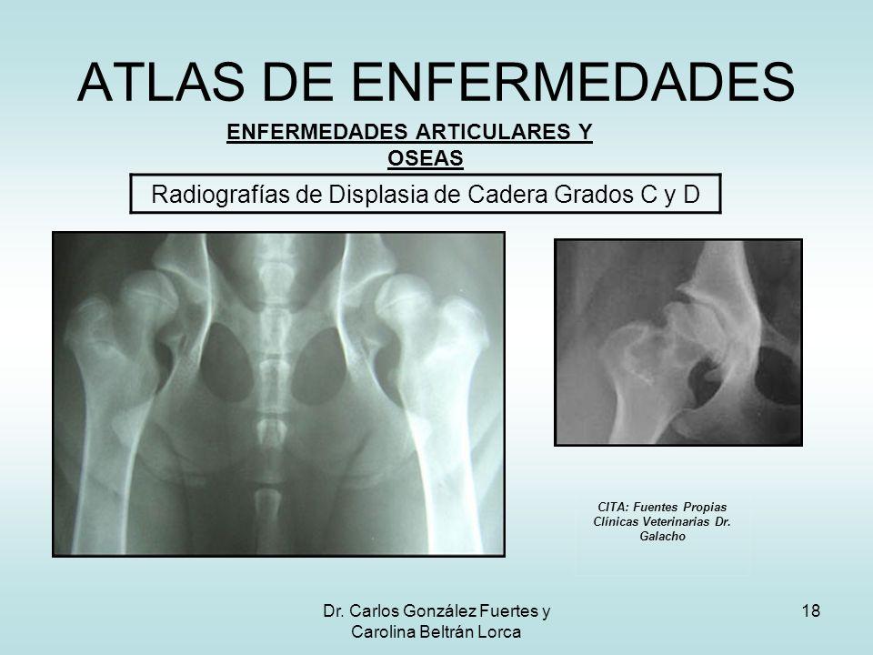 ATLAS DE ENFERMEDADES Radiografías de Displasia de Cadera Grados C y D