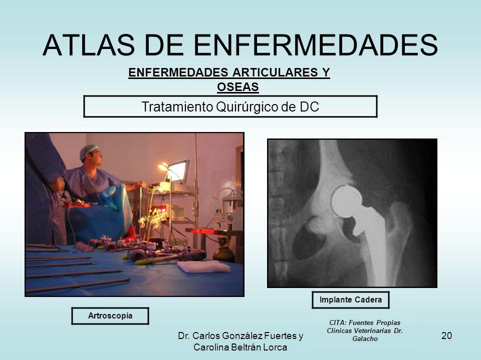 ATLAS DE ENFERMEDADES Tratamiento Quirúrgico de DC