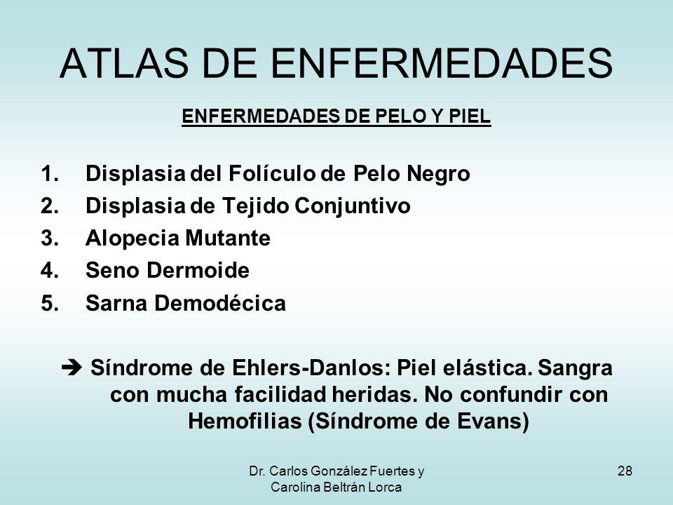 ENFERMEDADES DE PELO Y PIEL