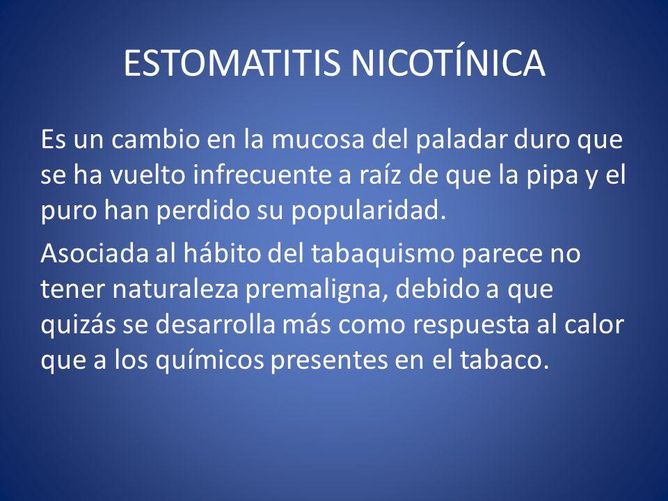 ESTOMATITIS NICOTÍNICA