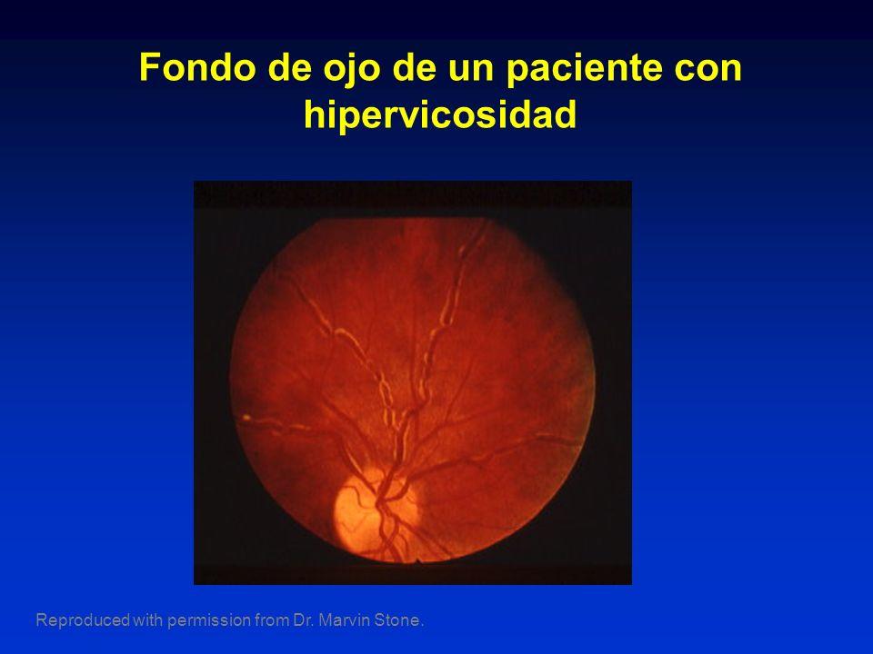 Fondo de ojo de un paciente con hipervicosidad