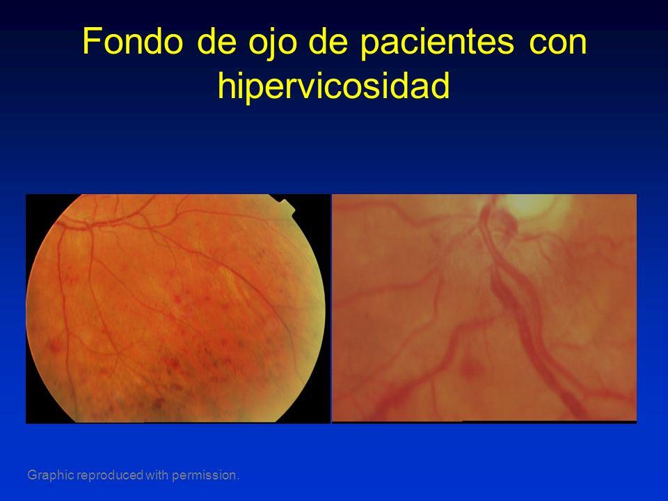 Fondo de ojo de pacientes con hipervicosidad