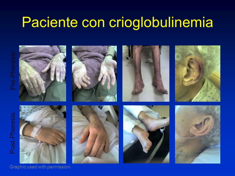 Paciente con crioglobulinemia
